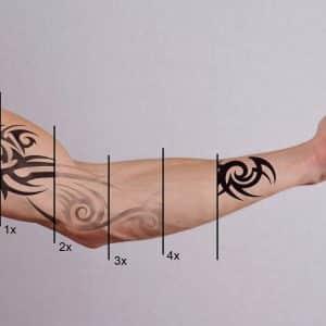 Tattoo verwijderen vloeistof & laser