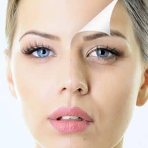 Huidverbetering & anti-aging